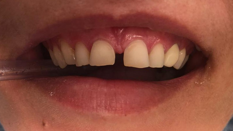 реставрация зубов в Красноярске