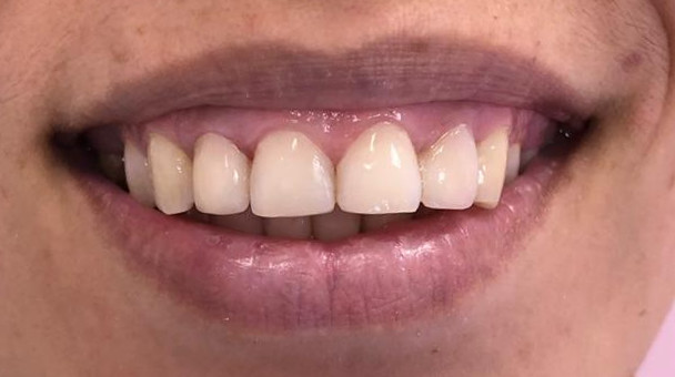реставрация зубов стоматология солодент