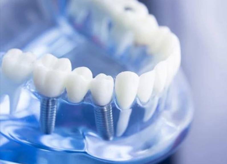 имплантация зубов в стоматологии SOLODENT