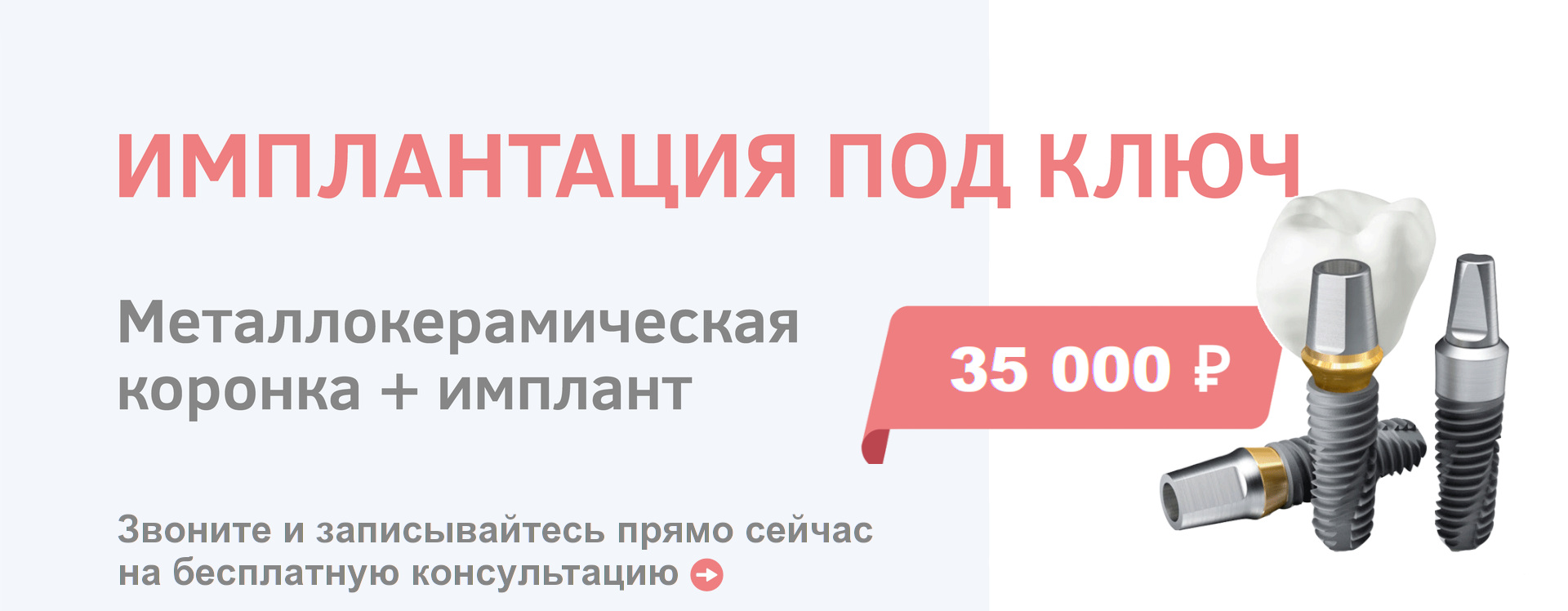 Имплантация под ключ Красноярск